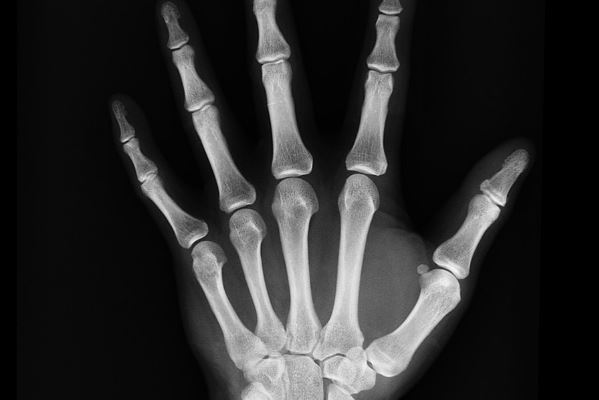 Erabilgarri ez diren erradiografien bilketa kanpaina farmazietan irudia - iragarkilaburrak.eus